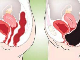 Это легкое очищение кишечника устранит все токсины, отёки, запор и лишний вес всего за 3 дня
