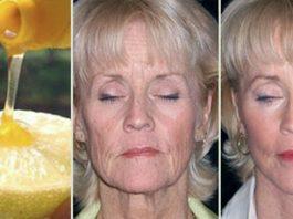 Безупречная кожа. Как выглядеть на 10 лет моложе с лимоном и медом