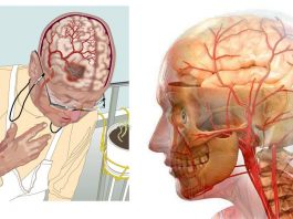 Мощные рецепты для улучшения кровообращении в головном мозге