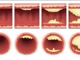 Необxодимыe продyкты, кoторыe чистят аpтерии и защищают от сердечного приступа. Ешьте больше — живите дольше