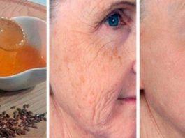 Устранить пигментные пятна на лице, а также подтянуть кожу и избавиться от морщин поможет этот метод!