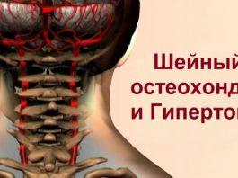 Избавься от хронической боли! 90 % работоспособных жителей планеты страдают шейным остеохондрозом…