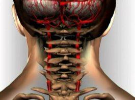 Почему высокое давление и шейный остеохондроз всегда будут неразлучны