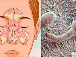 Проблема вашего заложенного носа находится в вашем кишечнике