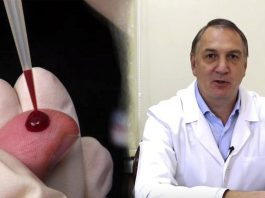 Профилактика тромбофлебита и атеросклероза. Простые советы от доктора Евдокименко