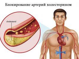 Рецепт лекарства, которое снижает уровень холестерина в крови