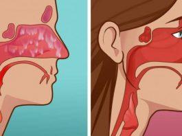 УБЕЙТЕ все инфекции носовой пазухи всего за 20 секунд