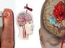 В случае инсульта, Вашу жизнь спасет обычная ИГЛА. Смотри, как оказать первую помощь при инсульте