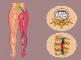 Рецепты для лечения и облегчения боли при ишиасе
