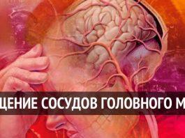 ТОП- 5 народных рецептов для очищения сосудов головного мозга