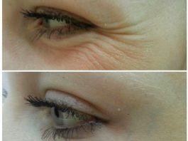 3 процедуры, которые помогут уменьшить «гусиные лапки» под глазами