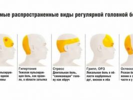 Давление или мигрень. 7 причин головной боли и что делать