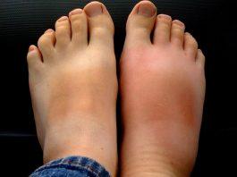 Эти средства против отеков ног, проверенные не одним поколением