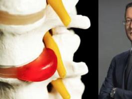 Лечение межпозвоночной грыжи без лекарств и операции: упражнения для спины от практика
