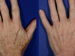 Омоложение кожи рук: 5 домашних рецептов для удаления морщин и пигментных пятен