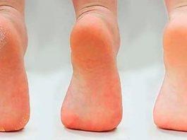 Применяйте 1 раз в неделю и ваши ноги станут здоровыми, а кожа стоп гладкой и шелковистой без трещин и натоптышей