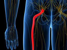 Приструнить седалищный нерв. Одно просто упражнение