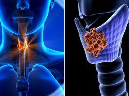 С помощью этих 3 советов вы забудете о болезнях щитовидки навсегда