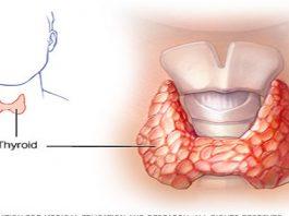 Вы никогда не услышите об этом от своего врача: Как вылечить щитовидную железу с помощью всего двух ингредиентов