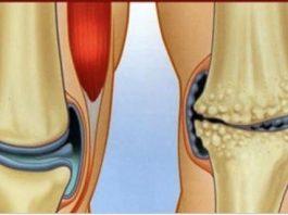 6 природных противовоспалительных средства, которые помогут избавиться от боли в суставах и боли в колене