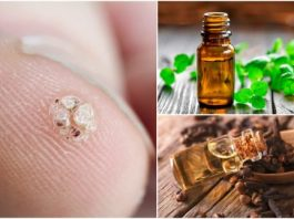 7 эфирных масел, которые помогут удалить бородавки