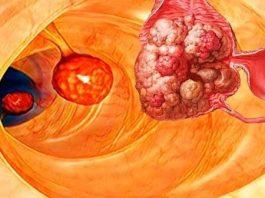 99% болезней, включая рак, можно было бы избежать, если бы люди знали об этом