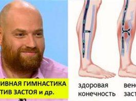 Очень эффективная гимнастика при застое лимфы в ногах и не только