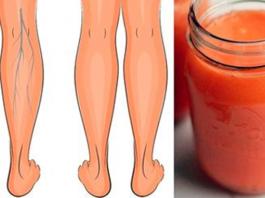 Эти соки эффективно укрепляют вены, улучшают кровообращение в ногах, и устраняют отёки
