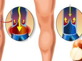 Как быстро избавиться от варикоза и сосудистой сетки на ногах