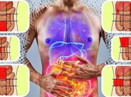 Карта боли в животе и как по ней распознать начало болезни