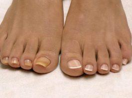 Лучшее домашнее средство от грибка ногтей, всего из 2 ингредиентов