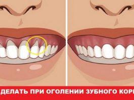 Оголилась шейка зуба. Узнай, как вернуть десну обратно