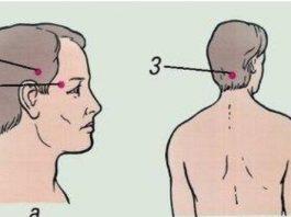 Проверенный способ лечения головной боли