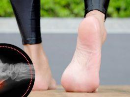 Пяточная шпора: 5 упражнений для лечения, которые можно выполнять дома