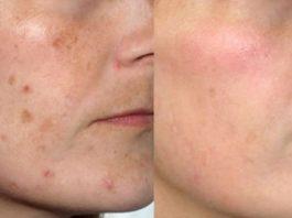 Самая мощная комбинация удалит пигментные пятна, морщины, угри и сделает вашу кожу идеальной