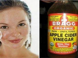 Сделайте сами: тоник из яблочного уксуса для умывания