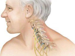 Шеей надо вертеть. Как без боли вылечить остеохондроз: точка иммунитета и правильная подушка