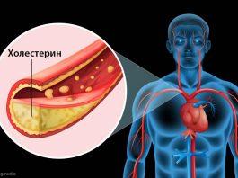 Вот как очистить сосуды от холестерина за 40 дней без единого лекарства