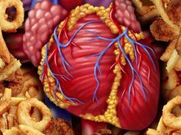 Я — кардиолог. Вот 9 продуктов, которые я запрещаю есть своим близким