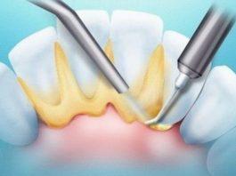 Зубной камень – как убрать народными средствами