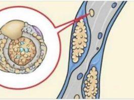 15 полезных продуктов для очистки артерий и профилактики инсульта, тромбоза и сердечного приступа. Научно доказано