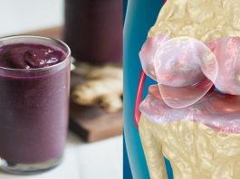 5 знакомых ингредиента устранят воспаление суставов и успокоят боли
