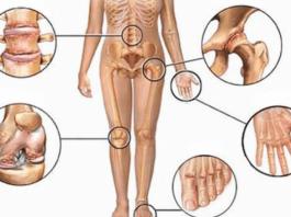 5 натуральных противовоспалительных средств при болях в суставах