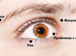 Восемь тревожных сигналов глаз о проблемах со здоровьем. Никогда не стоит игнорировать