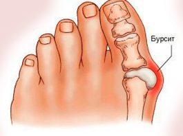 Воспаление и деформация большого пальца стопы, боли: 6 домашних средств для 100% устранения