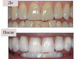 Четыре простых средства отбелят Ваши зубы за 5 минут. Эффект невероятный