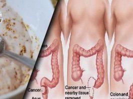 Эти два привычных ингредиента выведут из толстой кишки килограммы токсинов