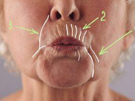Как убрать даже самые глубокие морщины вокруг рта: 5 домашних масок, творящих чудеса с увядающей кожей