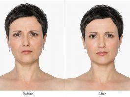 Календарь ухода за собой: вот какие процедуры на самом деле нужно делать у косметолога в 25, 30, 40, 50 и 60 лет