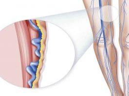 Мазь от варикозного расширения вен: гладкие ноги в любом возрасте